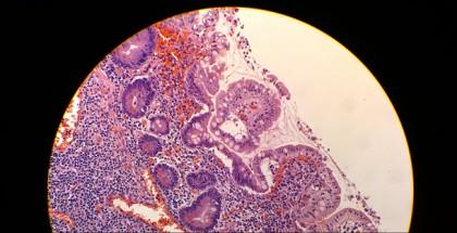 Lumia 1020:lla mikroskoopin kautta otettu kuva