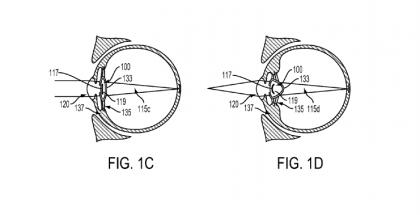 Google patenttihakemus silmään ruiskutettava elektroninen laite