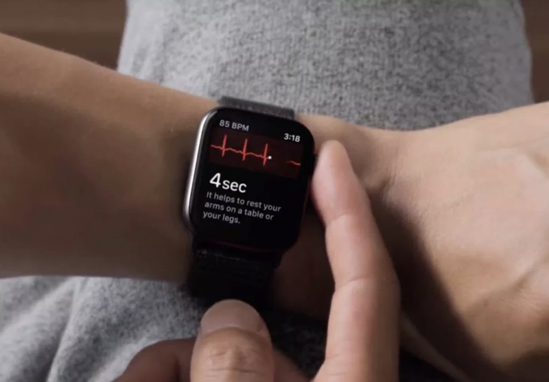 EKG-mittaus Apple Watchissa.