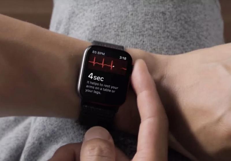 Toistaiseksi älykellojen terveysominaisuudet ovat keskittyneet sydämen terveyden ympärille. Esimerkkinä tässä Apple Watchissa nähtävä EKG-mittaus.