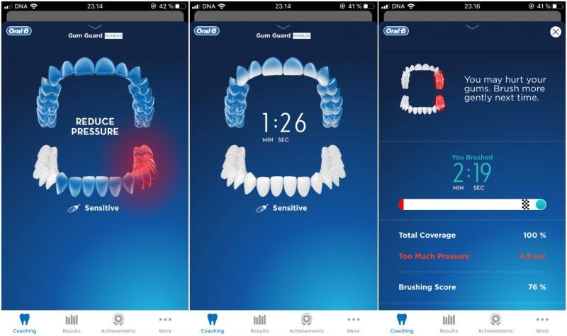 Sovellus auki harjattaessa näkyy eri alueiden harjaamisen edistyminen hampaiden muuttumisella valkoiseksi. Hetkellinen liian kova painallus näkyy punaisena ja tallentuu myös yhteenvetoon.