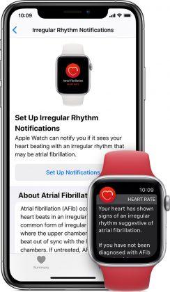 Apple Watch osaa varoittaa epäsäännöllisestä rytmistä, joka voi kieliä eteisvärinästä.